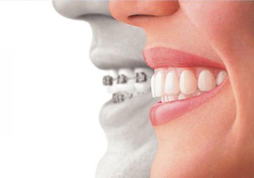 surrey-invisalign-dentist